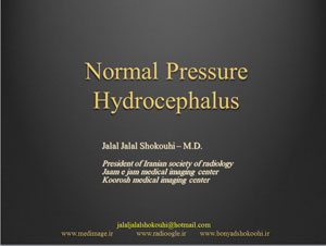 Normal-Pressure-Hydrocephalus
